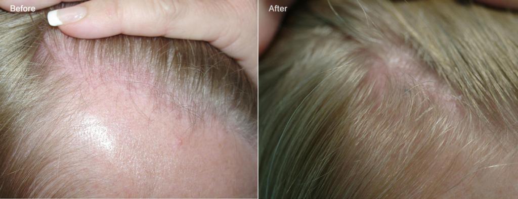przed i po kobieta blond lysienie
