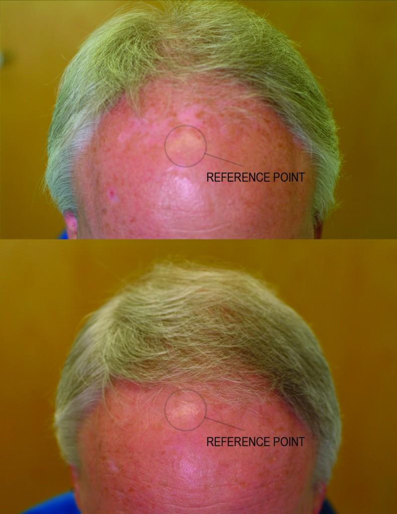 przed i po lysienie mezczyzna grzebien laserowy