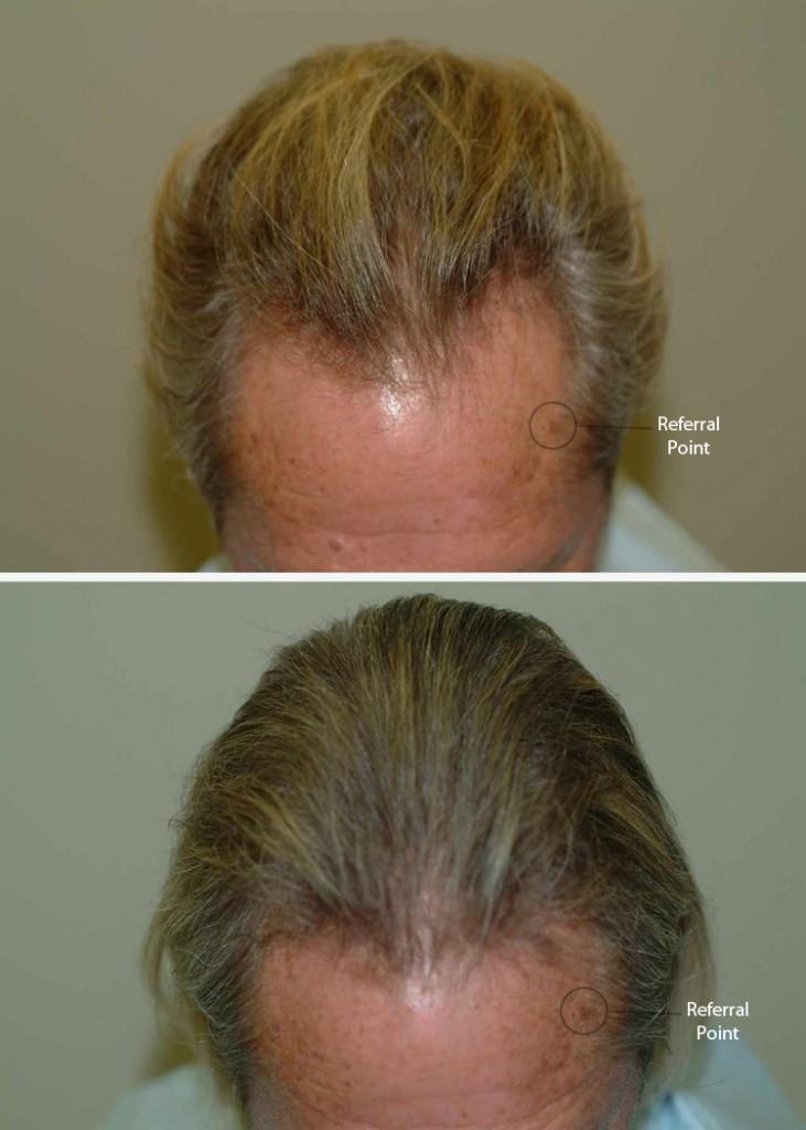 przed i po grzebien laserowy mezczyzna lysienie