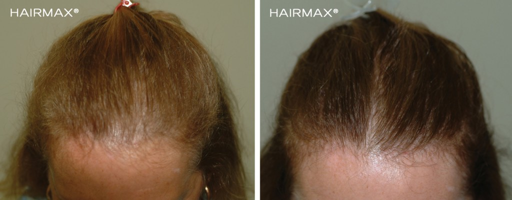 przed i po kobieta grzebien laserowy