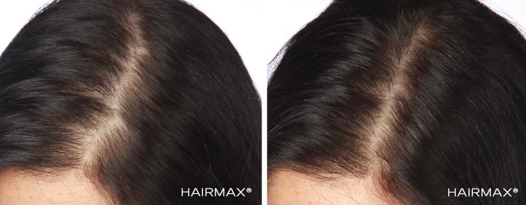 przed i po kobieta hairmax