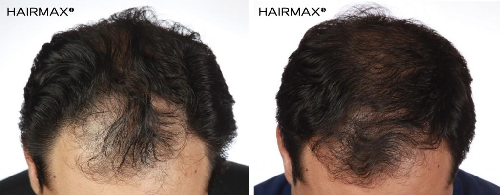 przed i po kuracja grzebien laserowy LLLT hairmax mezczyzna 1