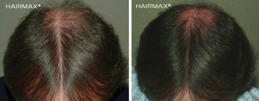 przed i po efekt po odbytej kuracja grzebien laserowy LLLT hairmax mezczyzna 10