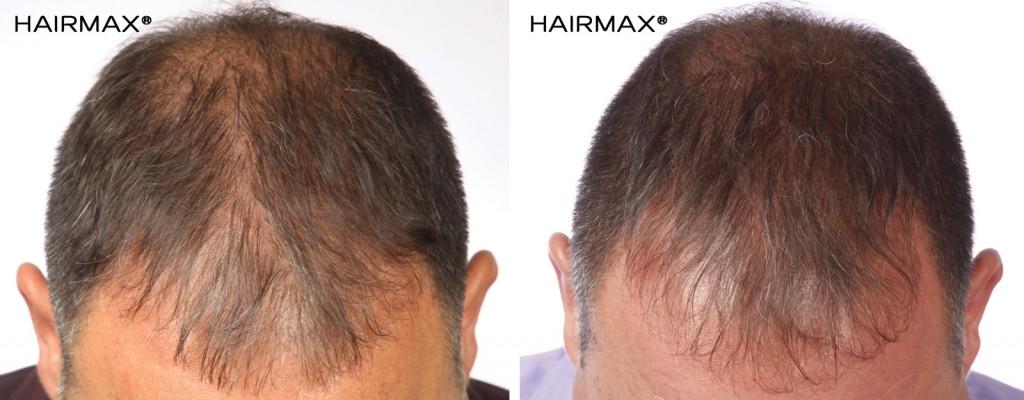 przed i po kuracja grzebien laserowy hairmax mezczyzna 7