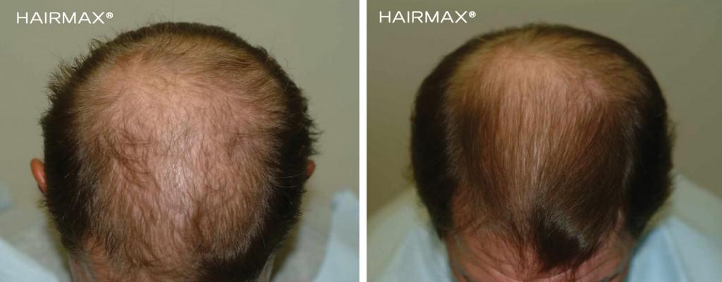przed i po kuracja laser LLLT hairmax mezczyzna 9