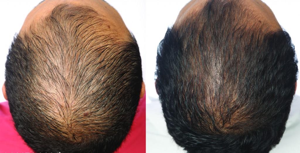przed i po kuracja grzebien laserowy LLLT hairmax mezczyzna jean