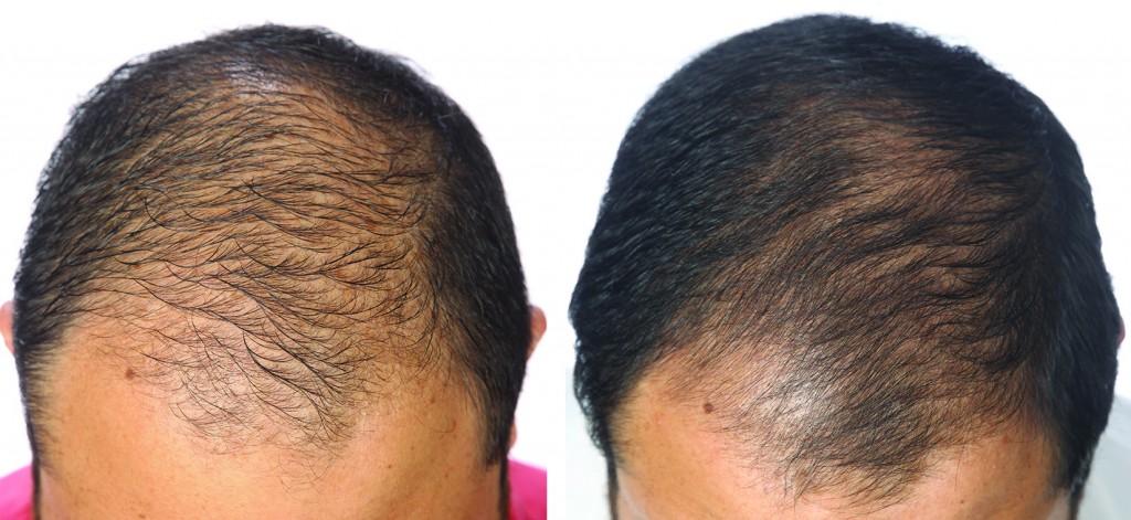 przed i po kuracja grzebien laserowy LLLT mezczyzna jean
