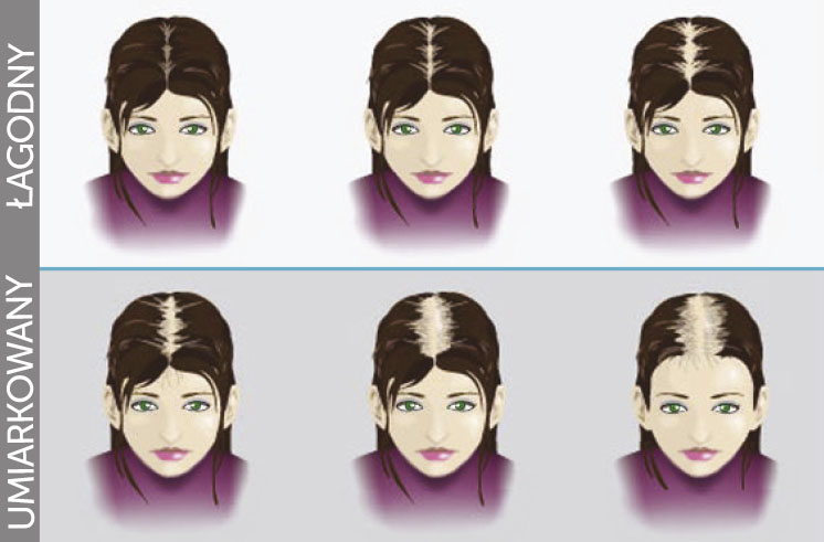 etapy lysienia kobieta