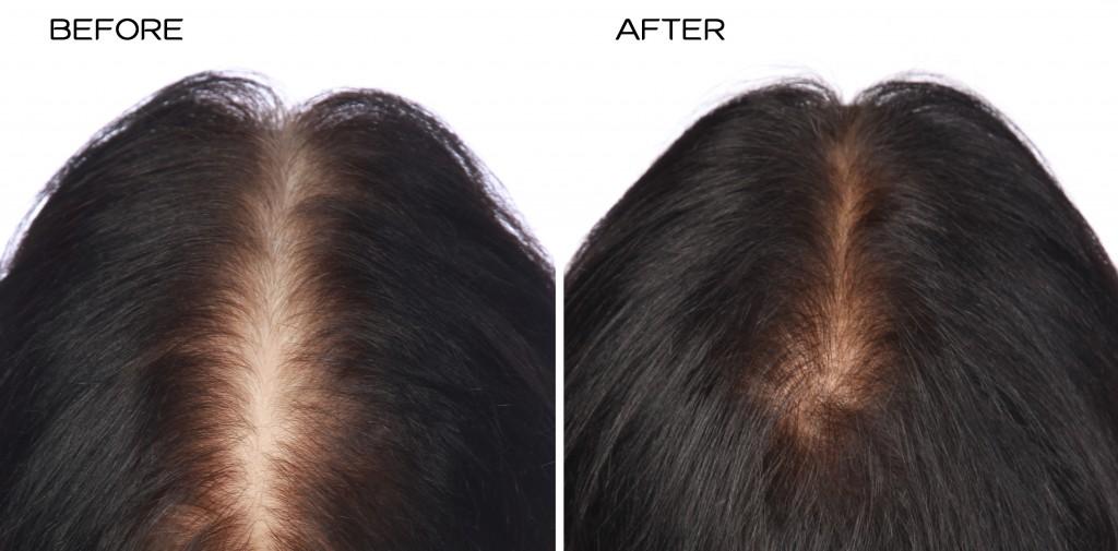 przed i po kuracja grzebien laserowy hairmax mezczyzna leoni